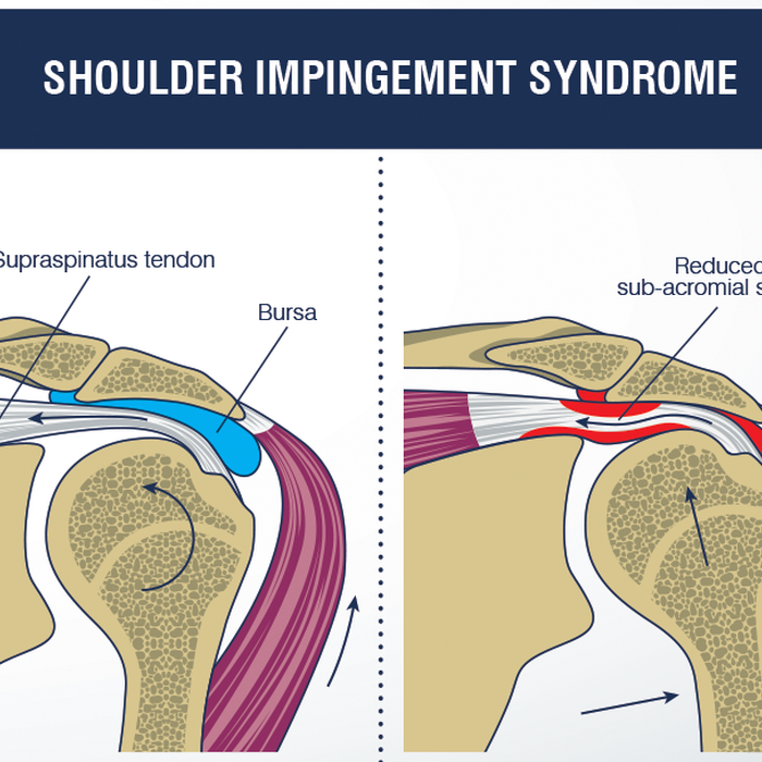 The Shoulders Are Intermittently Trapped And Compressed During Shoulder Movements Impingement Syndrome Also Called Subacromial